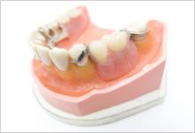 新製義歯のイメージ