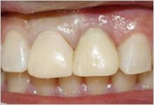 歯ぐきを整えるイメージ